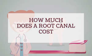 how much does a root canal cost 0